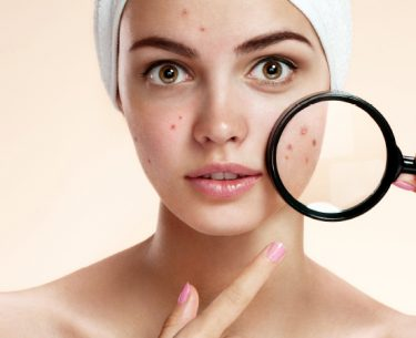 ACNE By Dr Steven Ang
