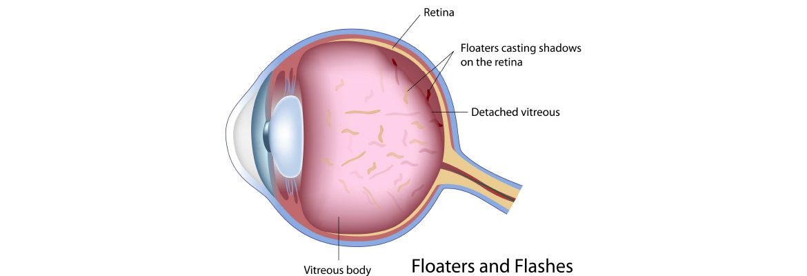 floaters-possible-red-flag-symptoms-of-a-serious-eye-problem-by-dr-elaine-huang