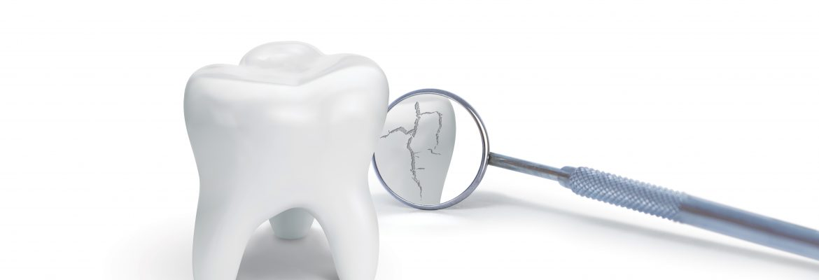 dr-raymond-lim-causes-of-crack-tooth